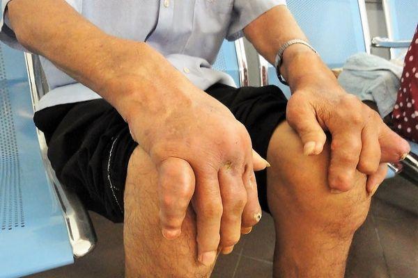 Biến Chứng Nguy Hiểm Của Bệnh Gout hay Gút