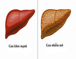 Bác sỹ khuyên những điều nên làm khi bị Gan nhiễm mỡ
