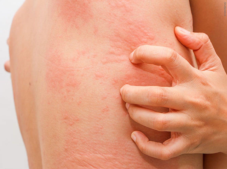 Thiếu vitamin và chất xơ dễ dẫn đến bị nổi mề đay