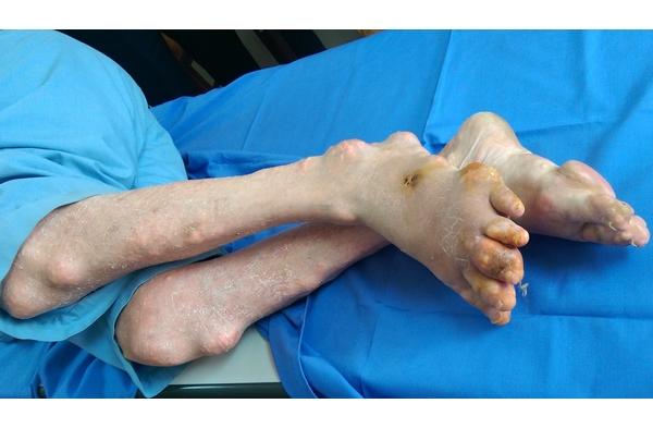Biến chứng Gout là teo cơ cứng khớp